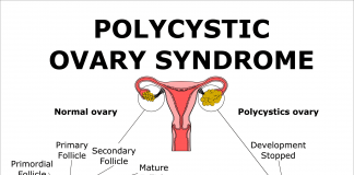 Polycystic Ovary Syndrome - PCOS