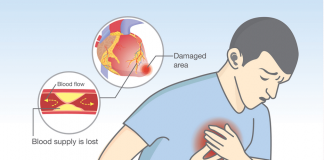 Man getting early symptoms of Heart Attack. Blood flow is getting blocked with dangerous fats Which causes heart attack.