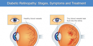 Diabetic Retinopathy: Stages, Symptoms and Treatment