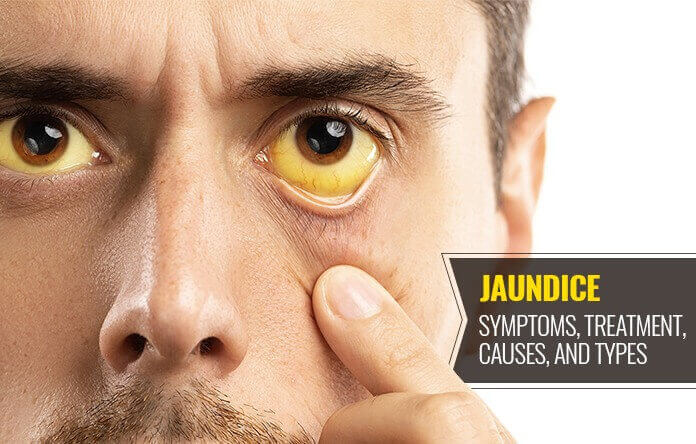 Jaundice Causes