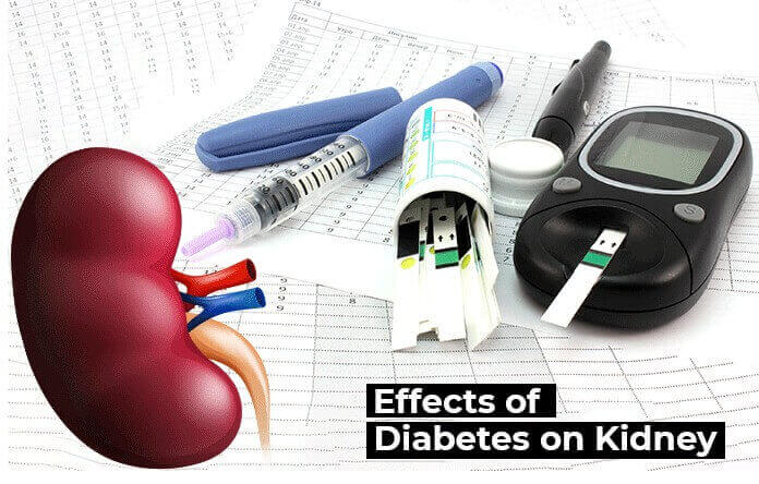 Kidney Disease for Diabetes patients