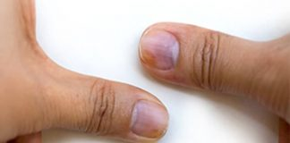 What Do Nail Abnormalities Say About Your Health