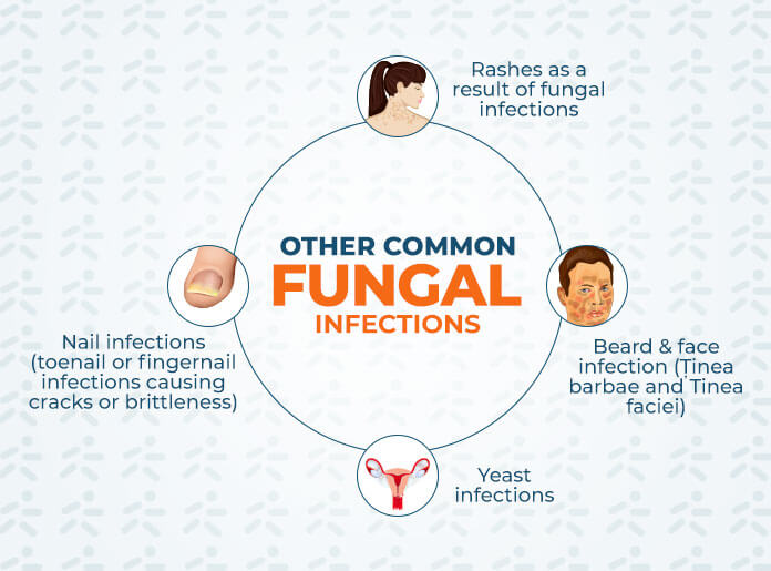 Common Fungal Infections