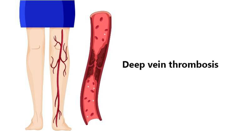 Deep Vein Thrombosis: DVT Causes, Symptoms, and Treatment – Medlife Blog:  Health and Wellness Tips